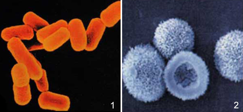 e coli bakterisi